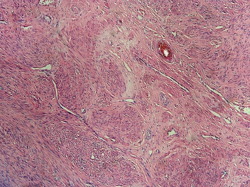 Mioma Uterino: Sintomas, como identificar e tratamento da doença