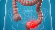 Câncer de colon, causas, sintomas e formas de tratamento!