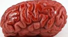 AVC hemorrágico, causas, sintomas e formas de tratamento!