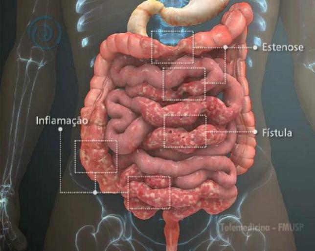 Doença de Crohn, causas, sintomas e formas de tratamento!