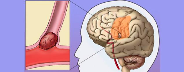 AVC (Acidente Vascular Cerebral): Sintomas e tratamento