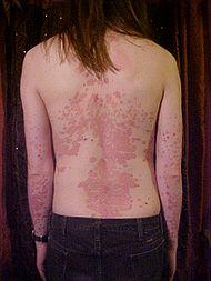 Psoríase: Sintomas e identificar e tratamento a doença
