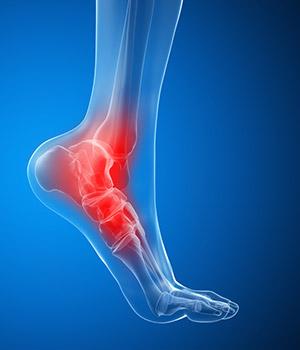 Dor no tornozelo, causas, sintomas e formas de tratamento!