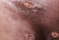 Cancro mole: Como identificar e tratar