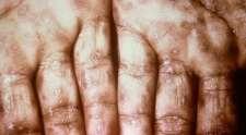 Sífilis, como identificar e como realizar o tratamento!