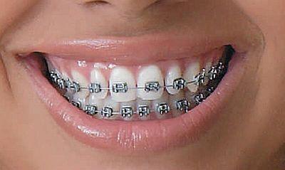 Dentes com formatos anormais, saiba como identificar e tratar!