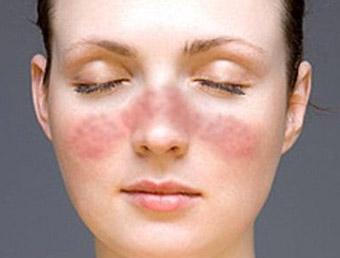 Lupus: conheça os sintomas e as formas de tratamento.