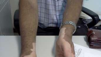 Vitiligo: Sintomas e como identificar e tratar