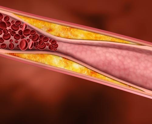 Colesterol, saiba como tratar a doença e quais são os sintomas!