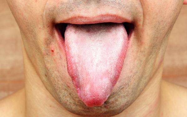 Principais sintomas e tratamentos da Candidíase.