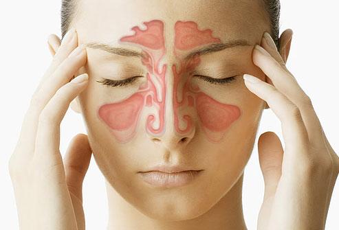 Sinusite, saiba os sintomas e os meios de tratamento